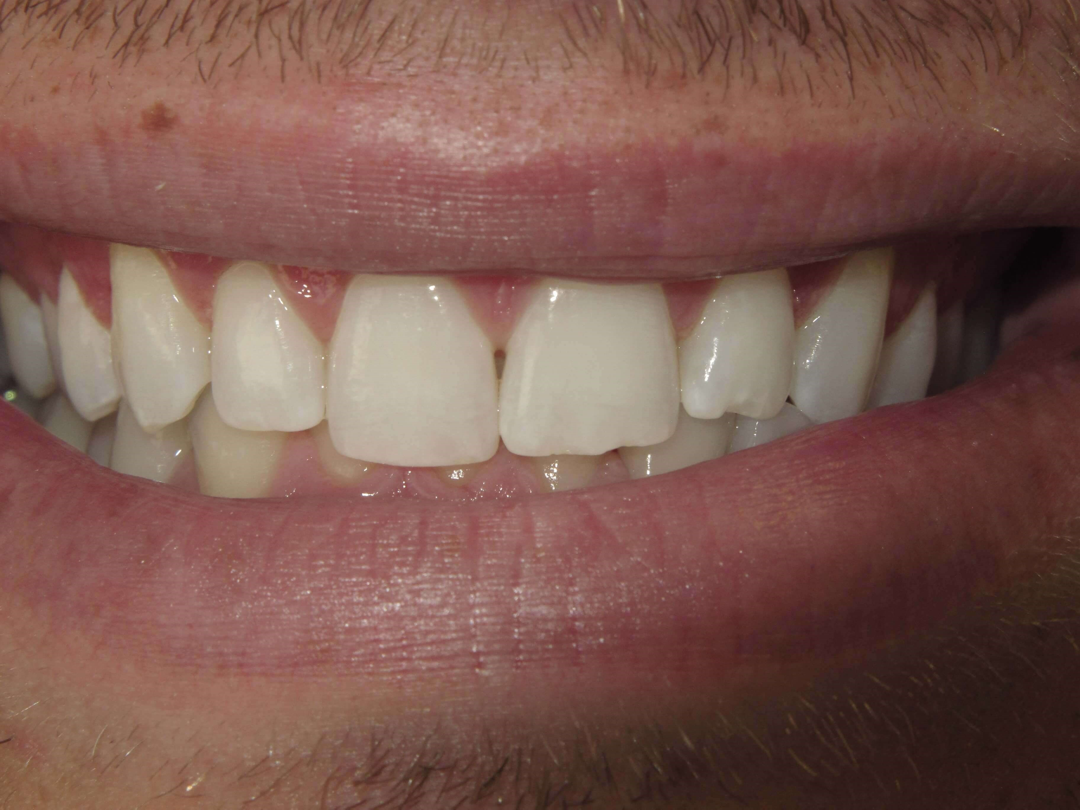 Adding length to teeth Before