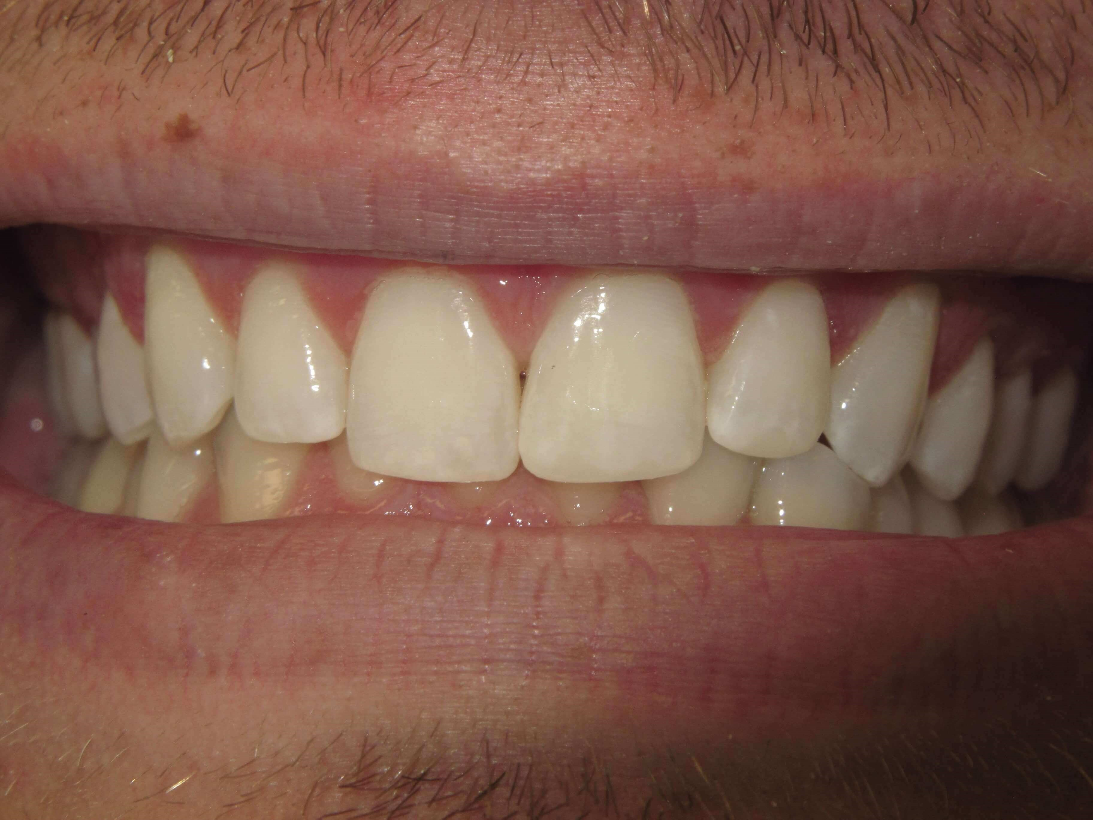 Adding length to teeth After